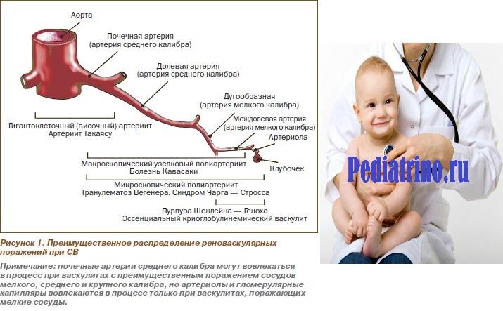 Микроскопический полиартериит (полиангиит)