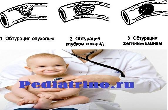 Обтурационная кишечная непроходимость