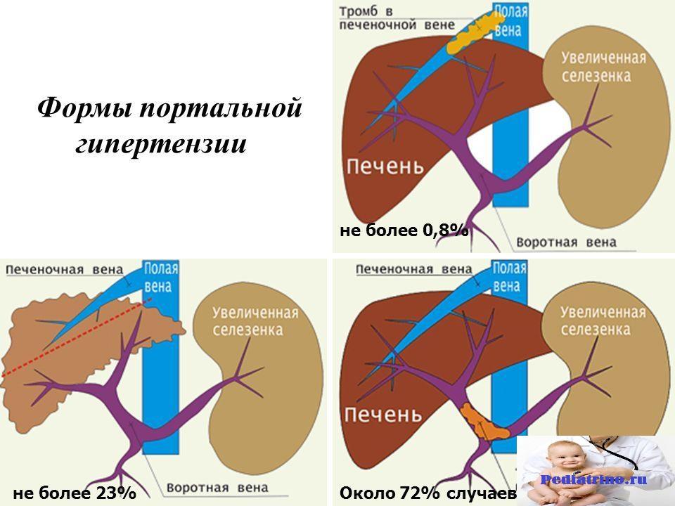 Портальная гипертензия